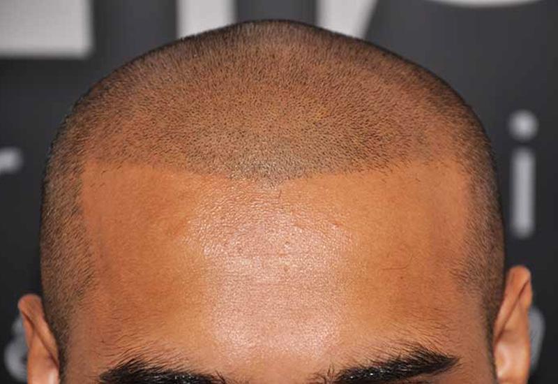 Qu'est-ce que la micropigmentation du cuir chevelu ?